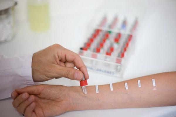 Проведение анализа на наличие аллергии