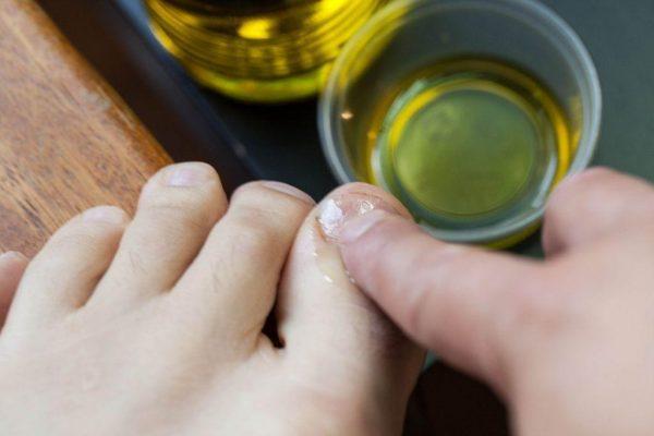 Процесс лечения грибка ногтей раствором с нашатырным спиртом