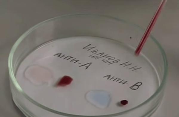 Процесс определения группы крови