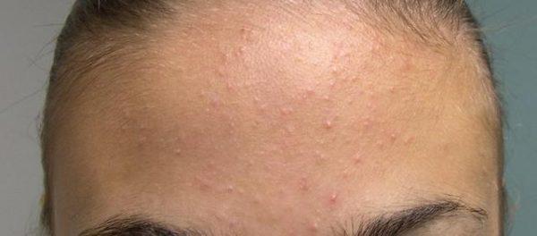 Прыщи на лбу могут возникать в результате аллергии