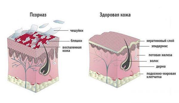 Псориаз и здоровая кожа