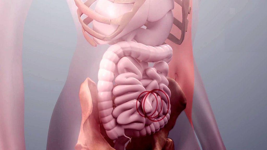 Пупочная грыжа у взрослых: симптомы, лечение фото