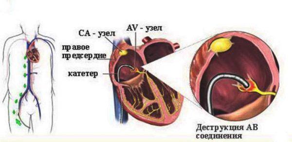 Радиочастотная катетерная аблация (РЧА) АВ-соединения (АВ-узла)