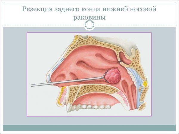 Резекция заднего конца нижней носовой раковины при хроническом гипертрофическом рините