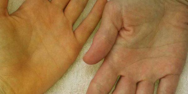 Рука здорового человека и больного алкогольным гепатитом