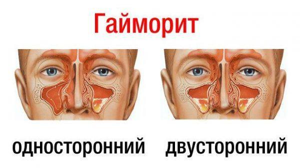 Симптомы и виды гайморита