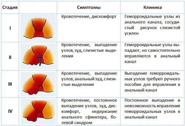 Симптомы и стадии геморроя