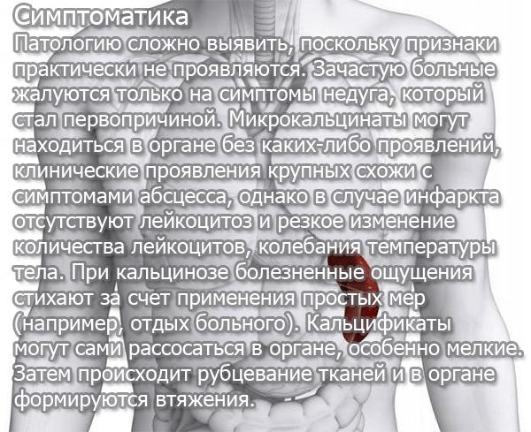 Симптомы кальцинатов в селезенке