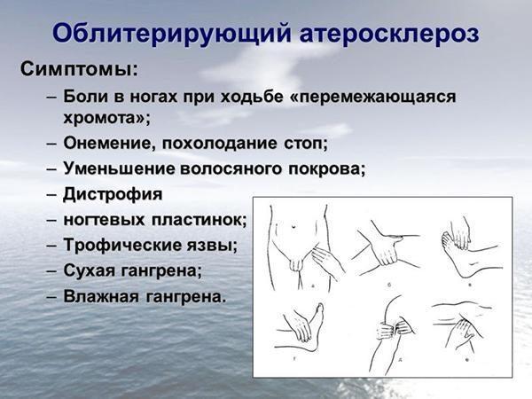 Симптомы облитерирующего атеросклероза