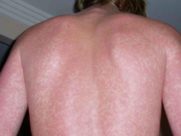 Скарлатина у взрослых — симптомы
