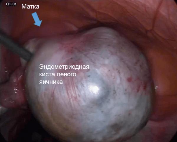 Снимок эндометриоидной кисты левого яичника