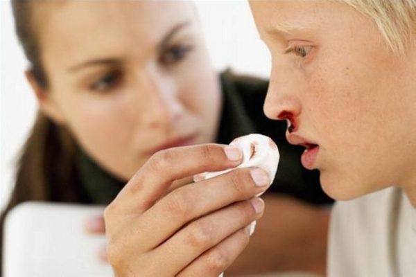 У детей даже с начальными формами лейкоза часто возникают носовые кровотечения