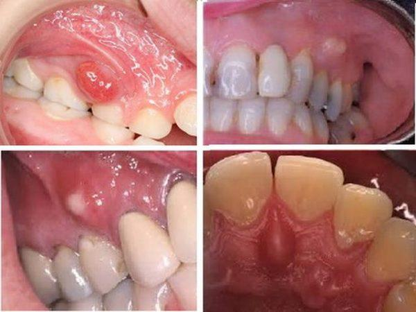 Фото зубного флюса (периостита)