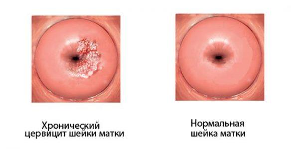 Хронический церцивит шейки матки