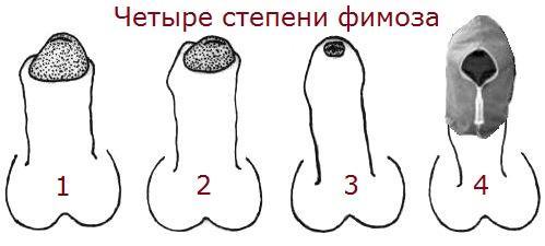 Четыре степени фимоза