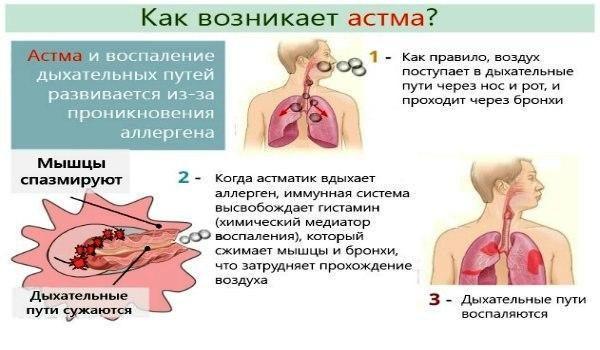 Что такое астма и как она возникает