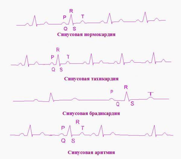 Электрокардиографическая диагностика нарушений сердечного ритма