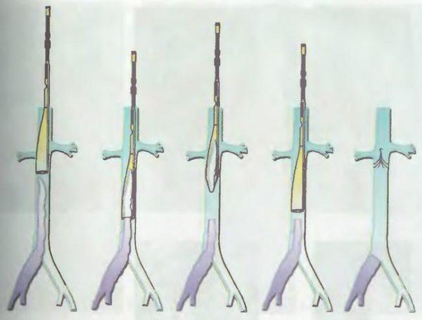 Эндоваскулярная катетерная тромбэктомия (ЭКТ) из нижней полой и подвздошных вен