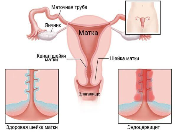 Эндоцервицит - одно из последствий уреаплазмоза у женщин
