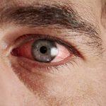 Конъюнктивит: лечение у взрослых