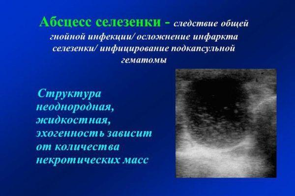 Абсцесс селезенки