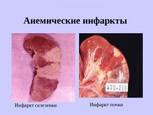 Анемические инфаркты