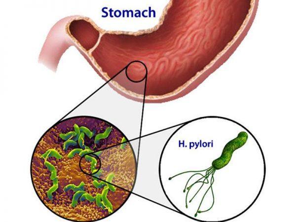 Бактерии Helicobacter Pylori в желудке
