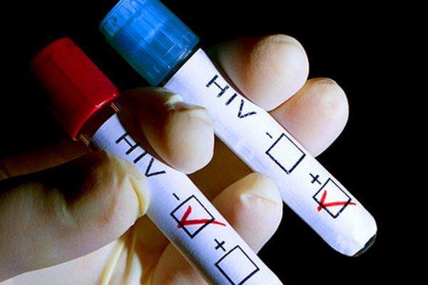 Что показывают анализы на ВИЧ и СПИД и как расшифровать результаты