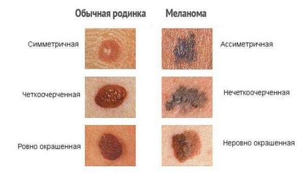 Важные отличия родинки от меланомы