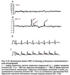 Вазоспастическая стенокардия на ЭКГ
