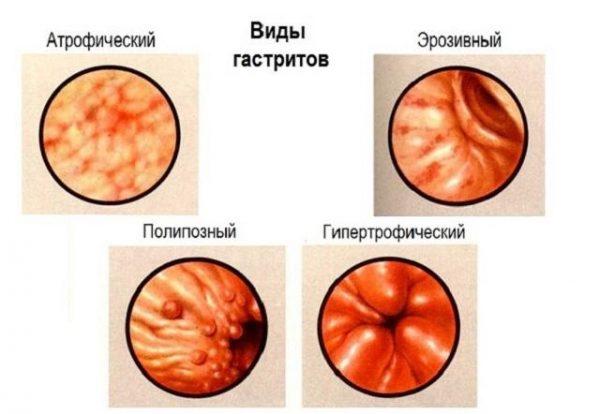 Желчный рефлюкс-гастрит: симптомы и лечение