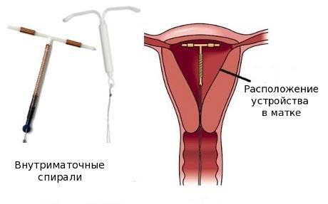 Сгустки крови во время месячных - причины и методы устранения
