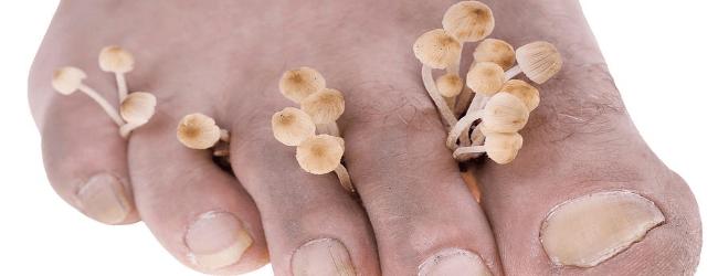 Что делать при грибке на коже