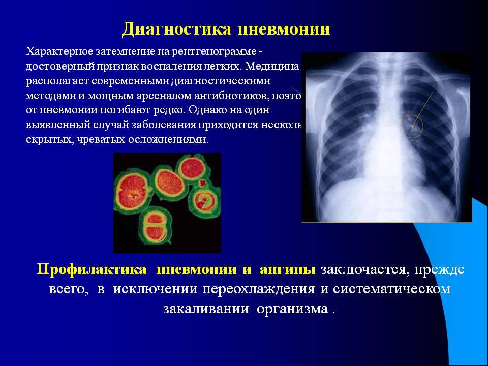 Сестринский процесс при пневмонии что входит в обязанности медсестры Диагностика пневмонии