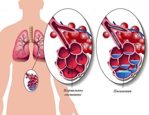 Заболевание поражает альвеолы