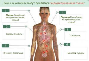 Зоны возникновения эндометриоидной ткани