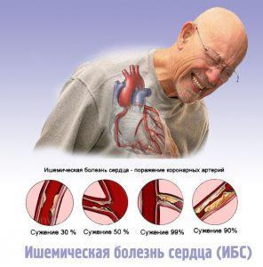 ИБС - поражение коронарных артерий
