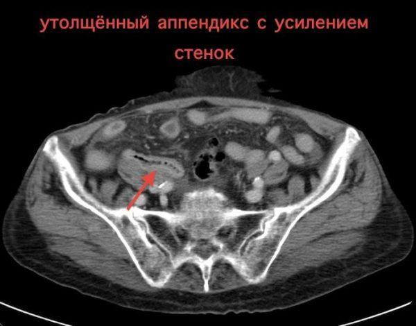 КТ брюшной полости