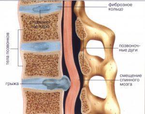 Как возникает грыжа в дисках позвоночника