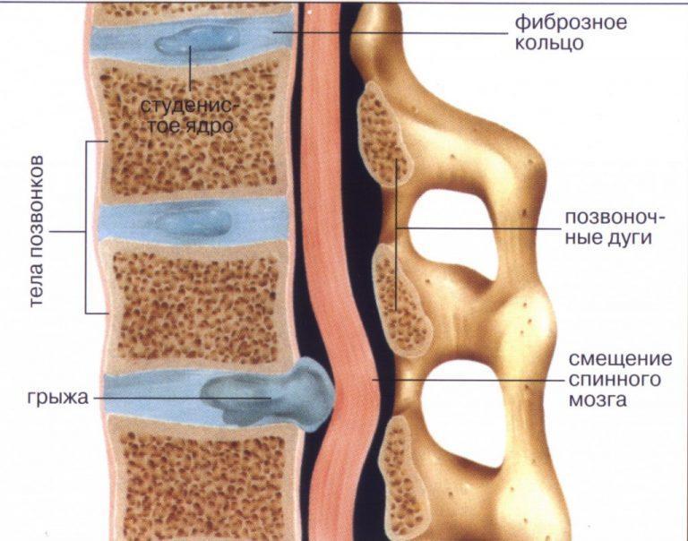 Лечение межпозвоночной грыжи в янцзы