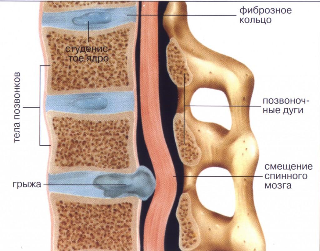 Что такое грыжа спинного позвоночника
