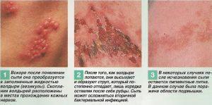 Как развивается сыпь
