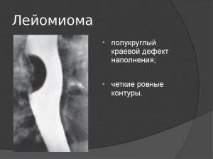Лейомиома