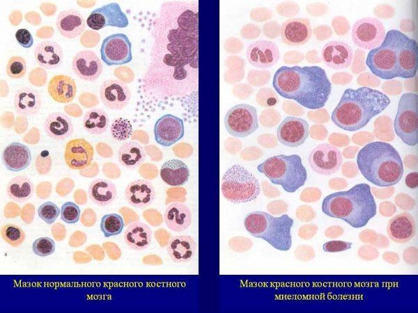 Мазок нормального костного мозга и костного мозга при миеломной болезни