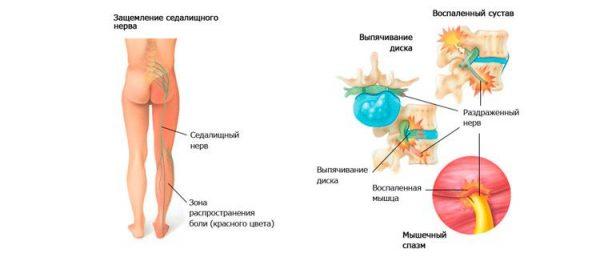 Межпозвоночная грыжа провоцирует изменения и нарушения в функционировании органов малого таза