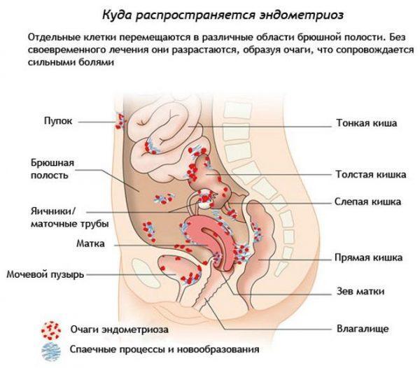 Места распространения эндометриоза