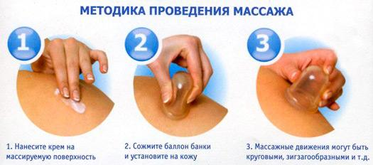 Методика проведения баночного массажа