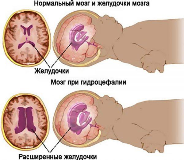 Мозг и желудочки мозга у ребенка при гидроцефалии