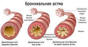 Нормальные бронхи и бронхи при бронхиальной астме