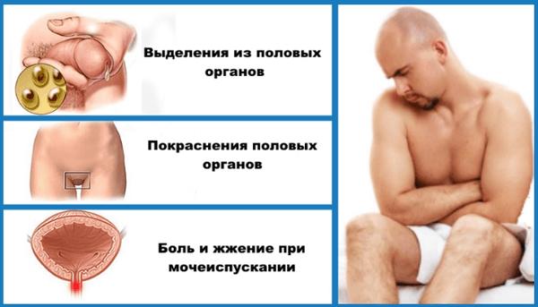 Общие симптомы венерических заболеваний у мужчин